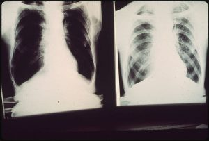 Black Lung Xray Images